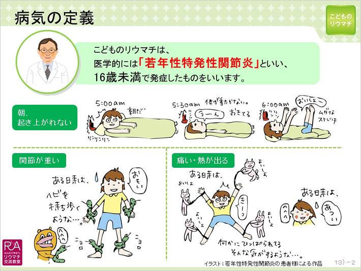 関節炎 若年 性 性 特発